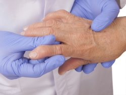 Photo of Болезни десен повышают риск ревматоидного артрита