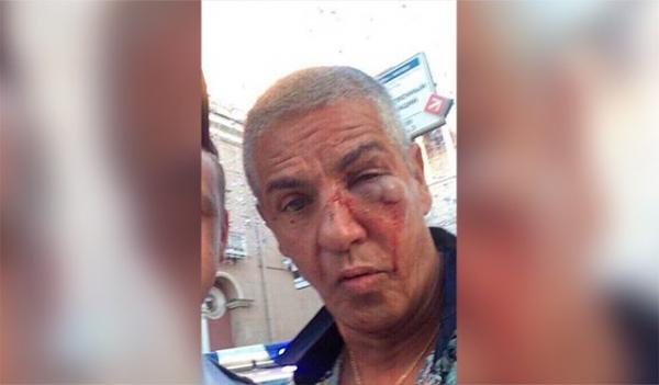 Photo of Звезду фильмов «Такси» Сами Насери избили в московском ночном клубе