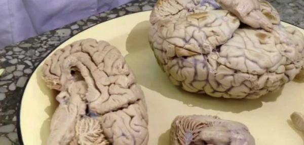 Photo of Признаки сужения сосудов головного мозга