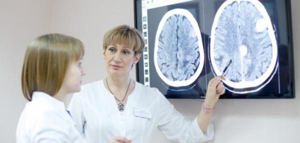 Компьютерная томография головы: Что это?0