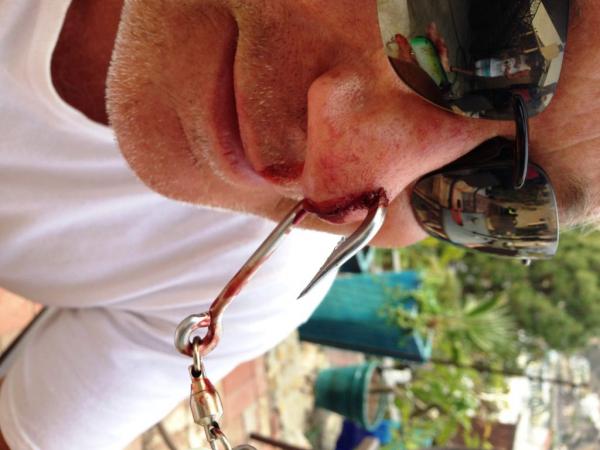 Как вытащить рыболовный крючок из пальца?0