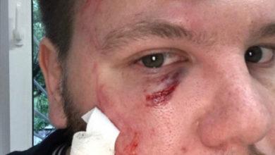 Photo of В Петербурге сторонники Путина избили активистов за листовки против «обнуления» сроков